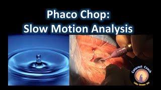 Slow Motion Analysis of Phaco Chop Cataract Surgery