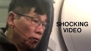 United Airlines David Dao Responds/ Does His Criminal Past Matter?