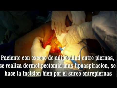 Cirugia de entrepiernas por el Dr. Alberto FERRIOLS