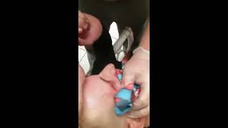 Huge zit (Bro give me a shot)