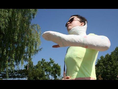 Emma Shoulder Spica plaster cast