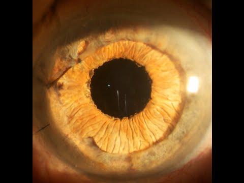 Iris reconstruction with a Human Optics artificial iris