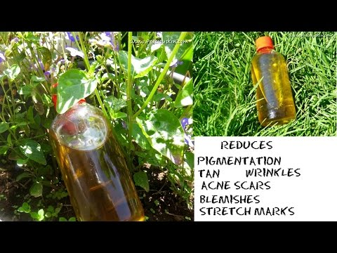 DE TAN Oil to Reduce Pigmentation , Tan ,Stretch Marks,Blemishes and Acne Scars
