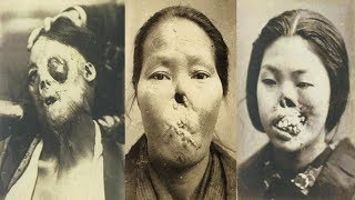 Warning!! Graphic Images: Fascinating Early Medical Oddities