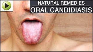 Oral Candidiasis - Natural Ayurvedic Home Remedies
