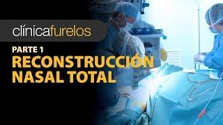 Reconstrucción nasal total - (Parte 1)