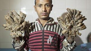Tree Man , Bangladesh | Abul Bajandar | Epidermodysplasia verruciformis | tree bark skin disorder