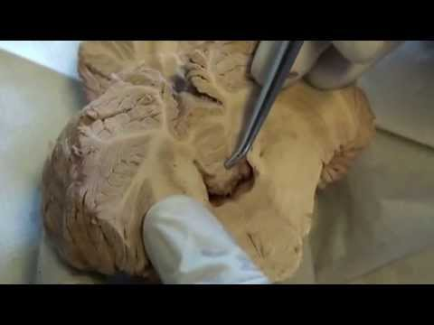 Xxx Mp4 Cerebellum Dissection Video 3 Axial View Sanjoy Sanyal 3gp Sex