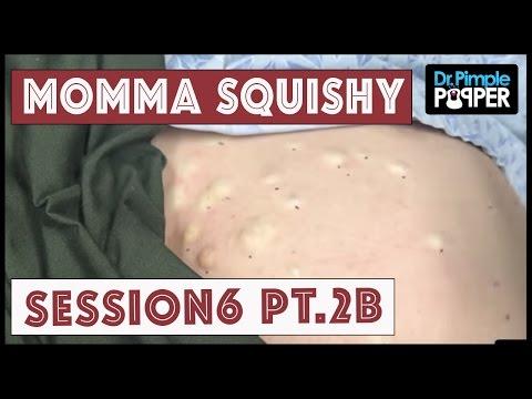 Xxx Mp4 Steatocystomas Momma Squishy Session 6 Part 2B 3gp Sex