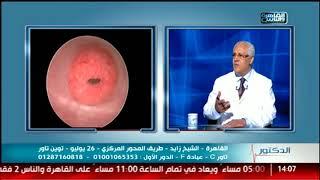الدكتور | دور الحقن المجهرى فى علاج تأخر الإنجاب مع دكتور عادل أبو الحسن