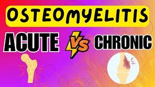 Osteomyelitis - Acute vs Chronic Osteomyelitis - Explained in 5 Minutes
