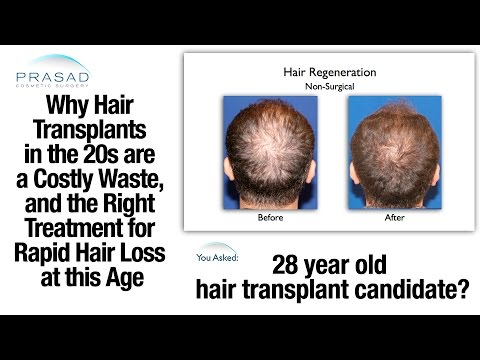 Why Hair Transplants Don't Work in the 20s, and Treatment to Stop Hair Loss at This Age
