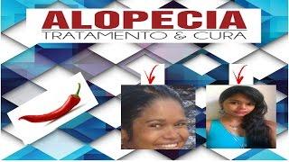 CURA DA ALOPÉCIA