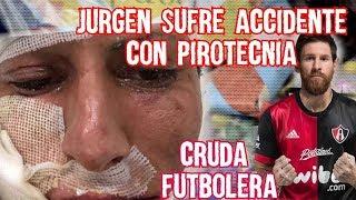Jurguen Damm sufre quemaduras por pirotecnia Messi con la de Atlas el Regreso de Nery Castillo Cruda