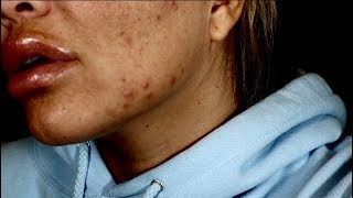 early pregnancy acne