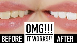 Whiten Teeth Instantly With MAKEUP?! ♥ Wengie