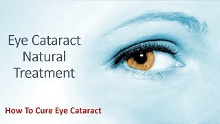 Eye Cataract Natural Treatment