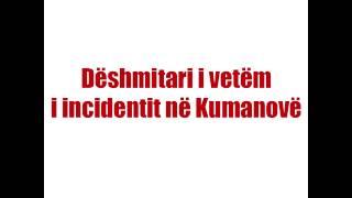 Dëshmitari i vetëm nga konflikti i fundit në Kumanovë