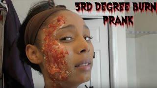 3rd Degree Burned Prank 🔥