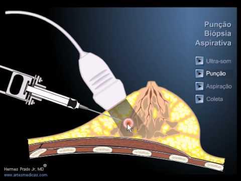 Punção da mama FNAB fine needle aspiration biospy