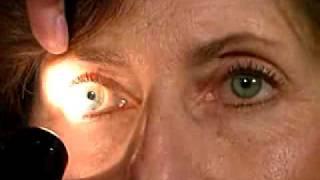 Neurologic Exam Cranial Nerves Normal : Cranial Nerves 2 & 3- Pupillary Light Reflex
