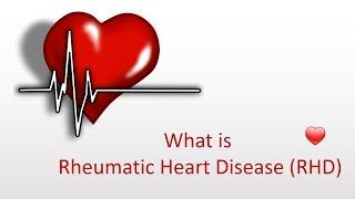 What is Rheumatic Heart Disease (RHD)