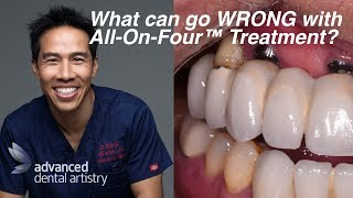 What can go wrong with All On Four™ Treatment?