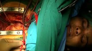 awake cardiac surgery