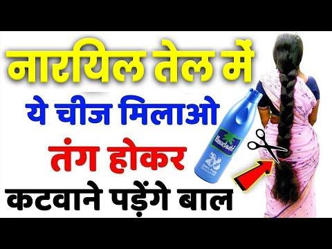 Xxx Mp4 1 रात लगाके देखो बालो की लम्बाई इतनी बढ़ेगी बस कटवाते रह जाओगे Fastest Hair Growth 3gp Sex