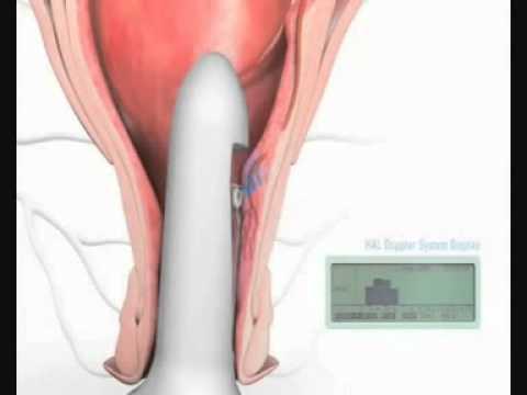 Xxx Mp4 LES HEMORROIDES TRAITEMENT INSTRUIMENTAL Gastro Casa Procto Casa 3gp Sex