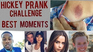 Hickey Prank Best Moments