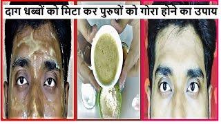 How to MEN Remove SUN TAN and get FAIR SKIN / Men Skin Bleaching in Hindi