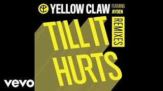 Yellow Claw - Till It Hurts (LNY TNZ Remix / Audio) ft. Ayden