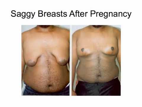 Saggy Breasts After Pregnancy