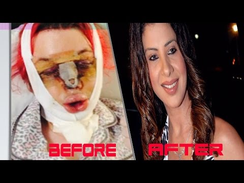 7 Bollywood Actress Plastic Surgery Before & After   Gone Horribly Wrong