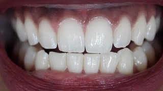 How To Get WHITE TEETH At Home In 3 MINUTES - Tested!! DOES IT WORK?!! | Chanelli