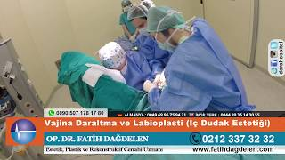Vajina Daraltma ve Labioplasti İç Dudak Estetiği +18 - Op.Dr. Fatih Dağdelen