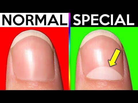 Xxx Mp4 10 Signs You Re Actually Normal 3gp Sex