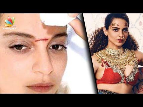 Xxx Mp4 Kangana Ranaut Admitted In Hospital After Injury During Shoot Hot Tamil Cinema News Manikarnika 3gp Sex