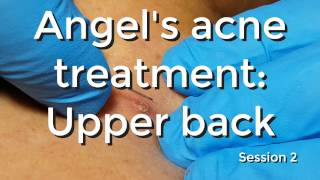 Angel's Acne Treatment: Upperback - Session #2