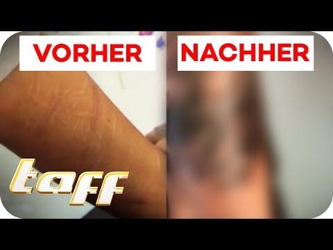 Xxx Mp4 Cover Up Für Narben Vom Ritzen Taff ProSieben 3gp Sex
