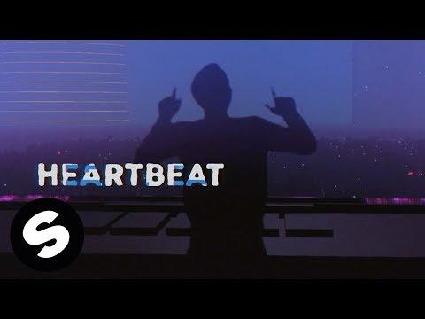 Xxx Mp4 Dastic X Robbie Mendez Heartbeat Official Lyric Video 3gp Sex