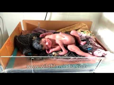 Indian woman gives birth to baby with 4 legs, 2 male sex organs