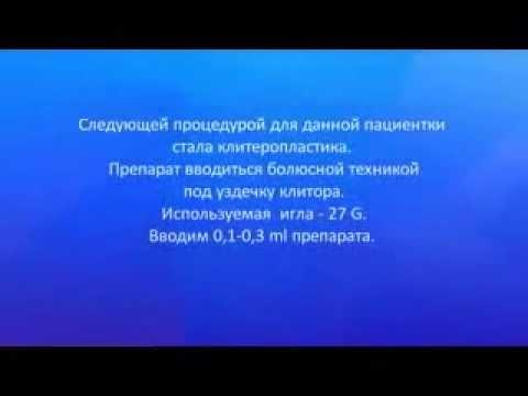 Labioplastía Vaginoplastía o Cirugía Estética Vaginal Procedimiento Ruso