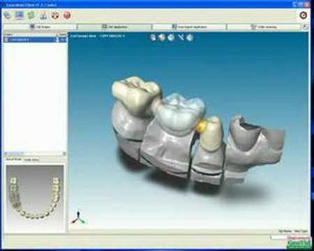Xxx Mp4 CAD Dental ABIERTO Escaneo Y Diseño De Cofias Coronas Etc 3gp Sex