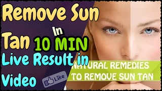 How to Remove Sun Tan from your Face & Hand | Home Remedies to Remove Sun Tan Easy &  Quickly