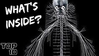 Top 10 Scary Things Secretly Living In Your BODY - Part 2