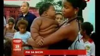 Загадка для медиков - 11-месячный ребенок с весом 8-летнего