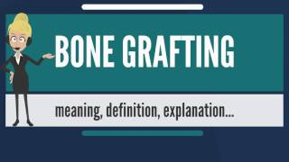 What is BONE GRAFTING? What does BONE GRAFTING mean? BONE GRAFTING meaning & explanation