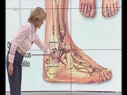 Esguince de tobillo Consulta Médicos Mira la vida